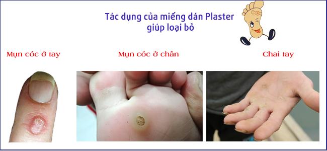 công dụng của miếng dán plaster